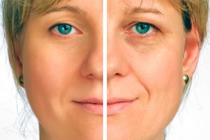 tratamiento de botox Valencia - formación para comerciales